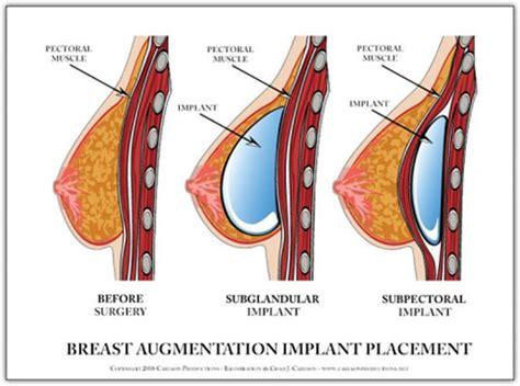 Breast implants videos breast augmentation virginia jpg 480x357